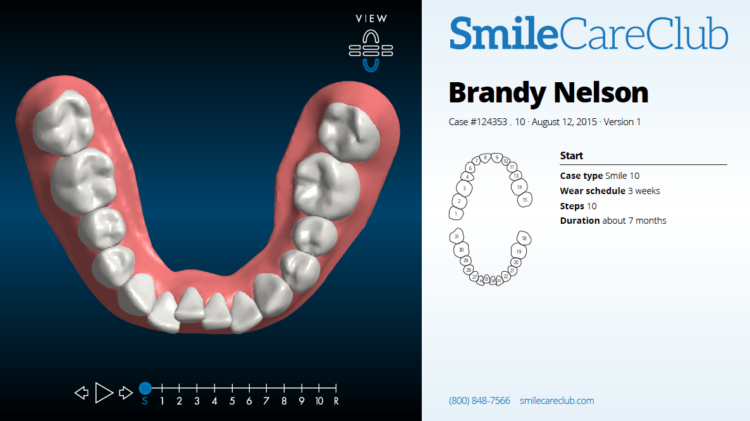 Why I decided to straighten my teeth again with SmileDirectClub, 20 years after having metal braces, and how I am doing it for less than $1500.00.